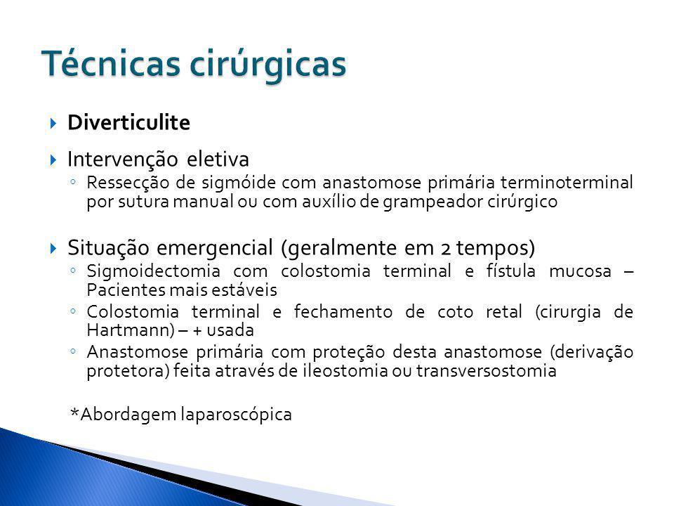 Técnicas cirúrgicas Diverticulite Intervenção eletiva