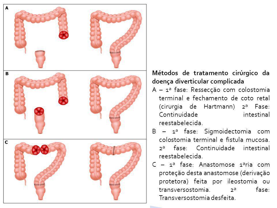 Métodos de tratamento cirúrgico da doença diverticular complicada