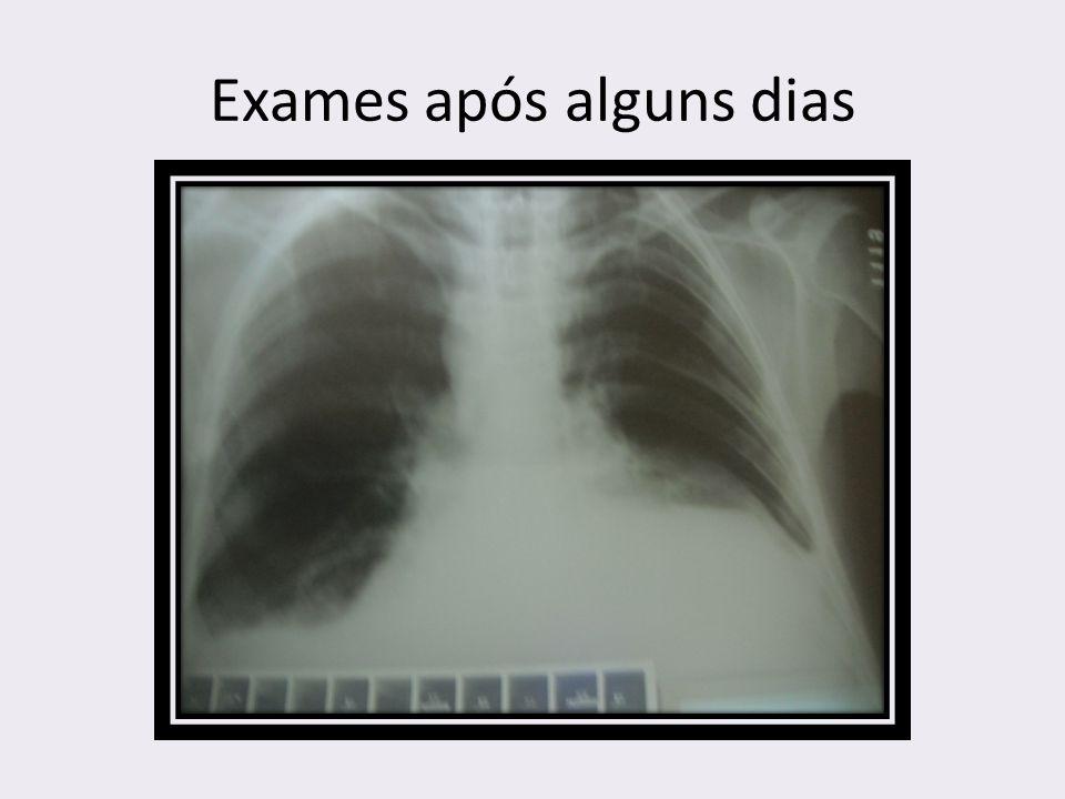 Exames após alguns dias
