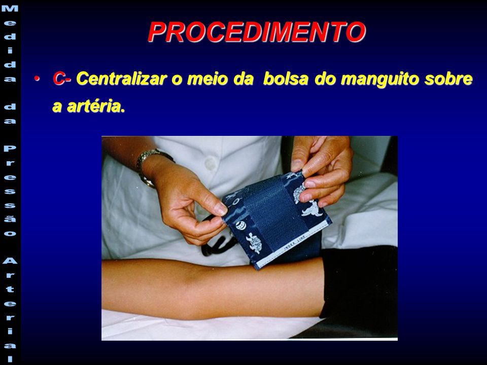 PROCEDIMENTO C- Centralizar o meio da bolsa do manguito sobre a artéria.