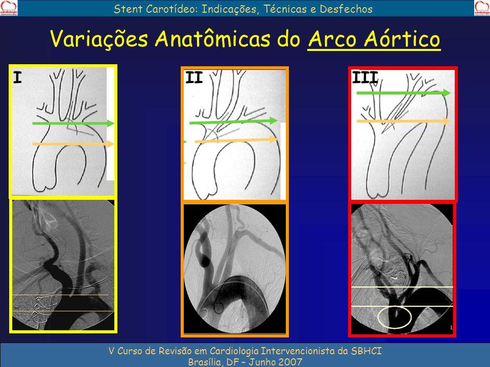 Variações Anatômicas do Arco Aórtico