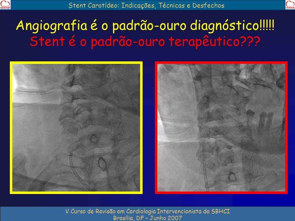 V Curso de Revisão em Cardiologia Intervencionista da SBHCI