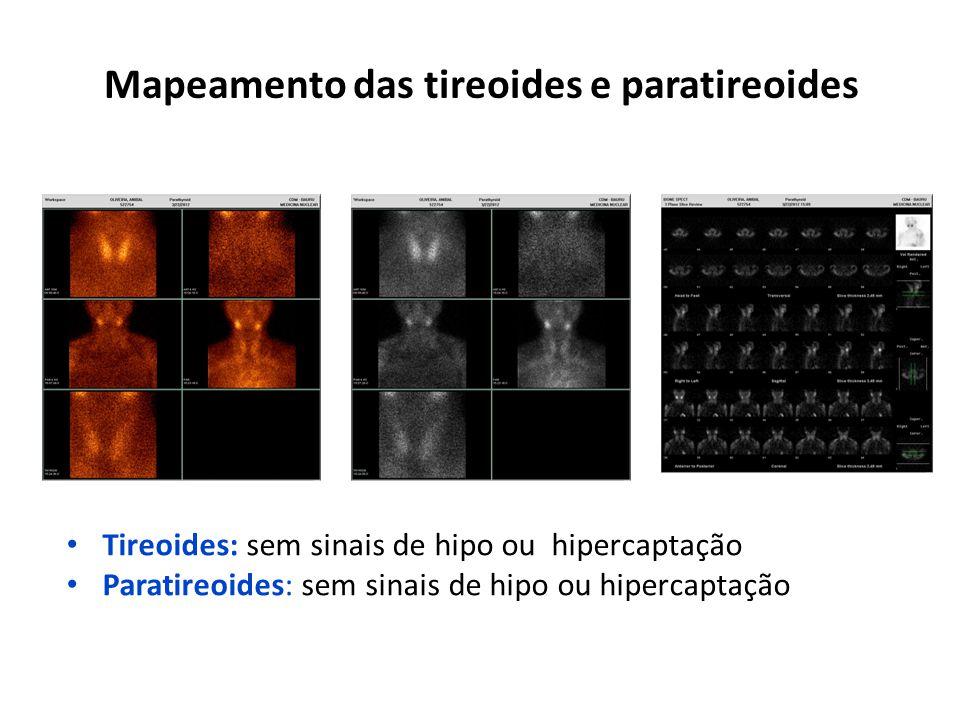 Mapeamento das tireoides e paratireoides
