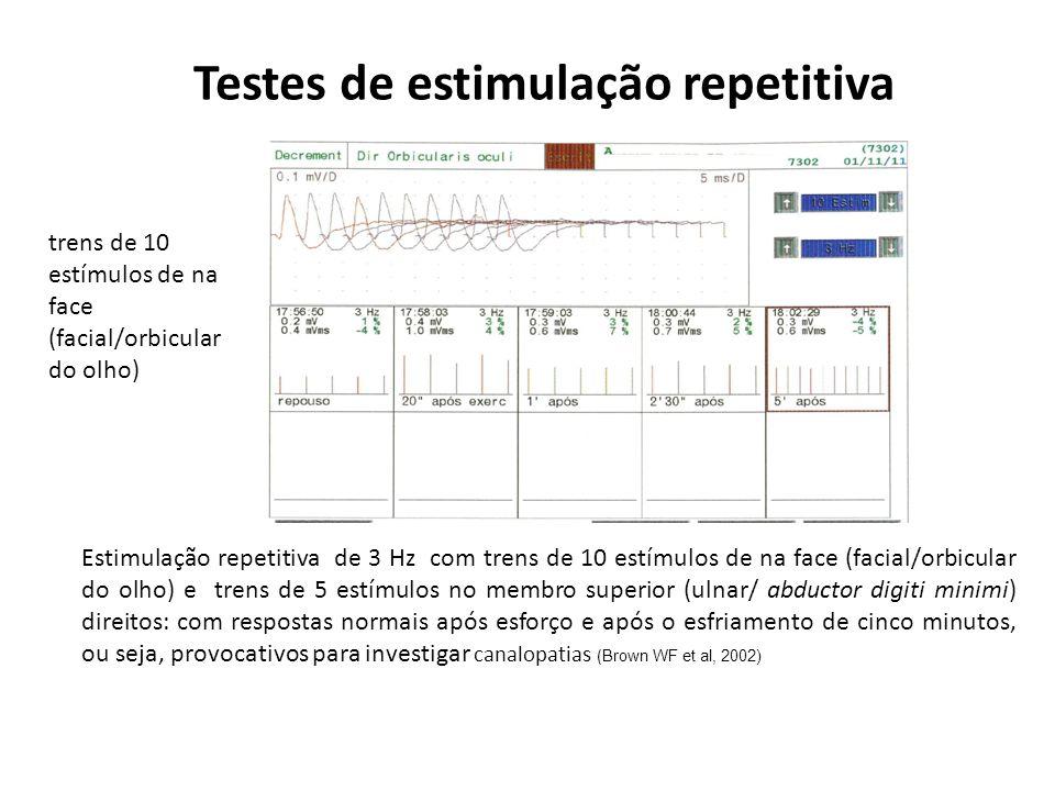 Testes de estimulação repetitiva