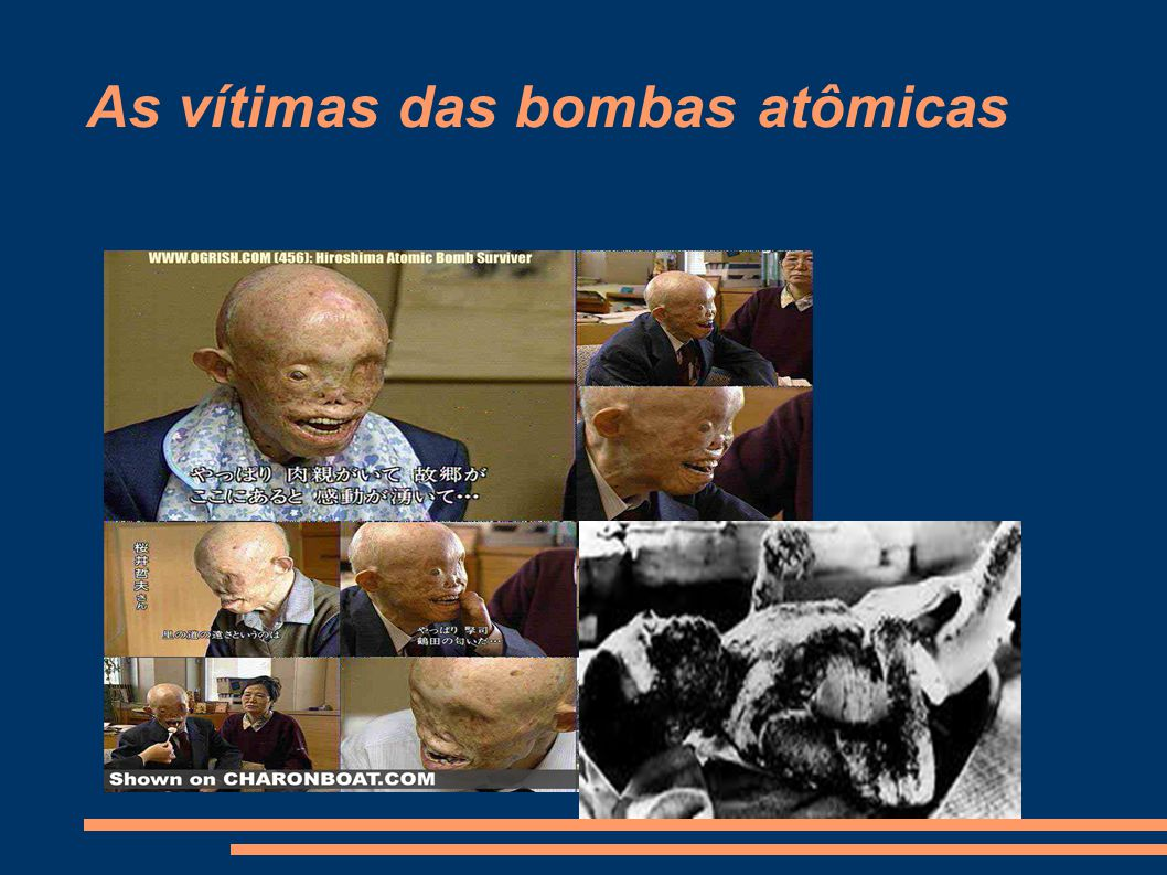 As vítimas das bombas atômicas