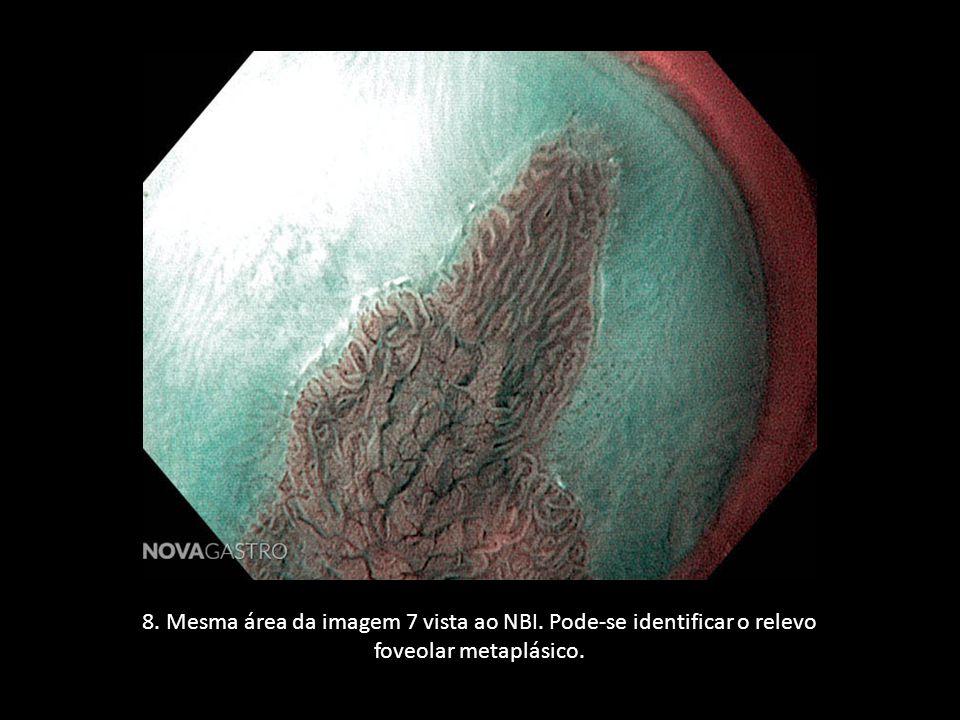 8. Mesma área da imagem 7 vista ao NBI