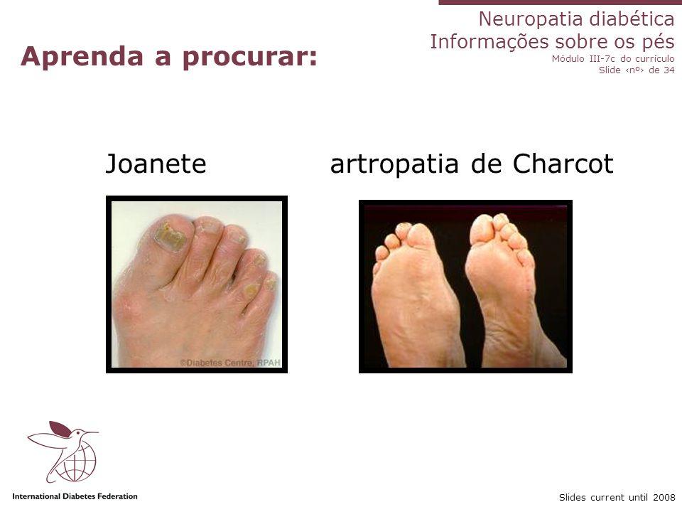 Joanete artropatia de Charcot