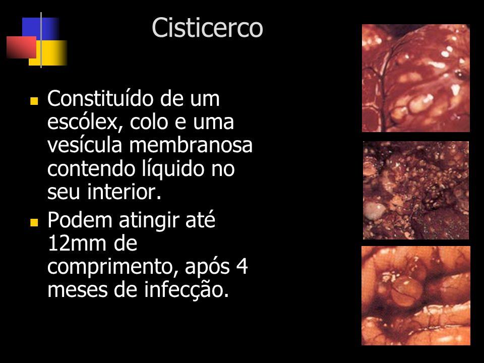 Cisticerco Constituído de um escólex, colo e uma vesícula membranosa contendo líquido no seu interior.
