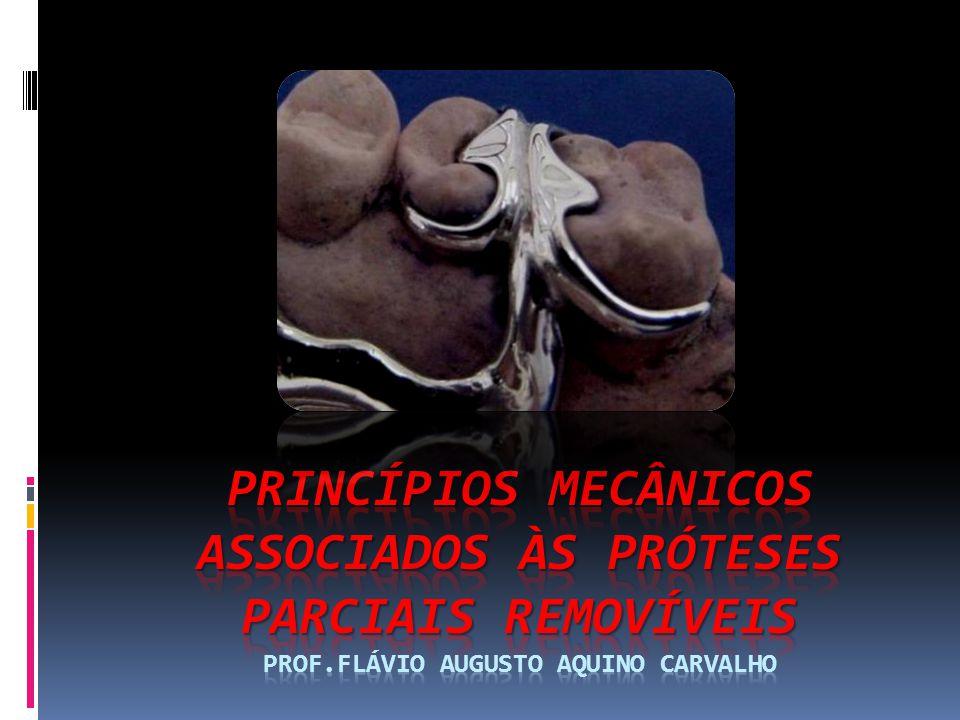 Princípios Mecânicos Associados às Próteses Parciais Removíveis Prof