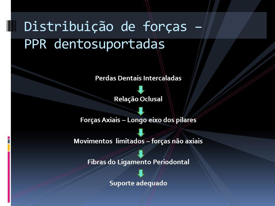 Distribuição de forças – PPR dentosuportadas