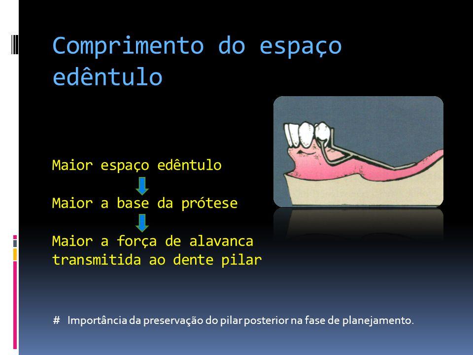 Comprimento do espaço edêntulo Maior espaço edêntulo Maior a base da prótese Maior a força de alavanca transmitida ao dente pilar