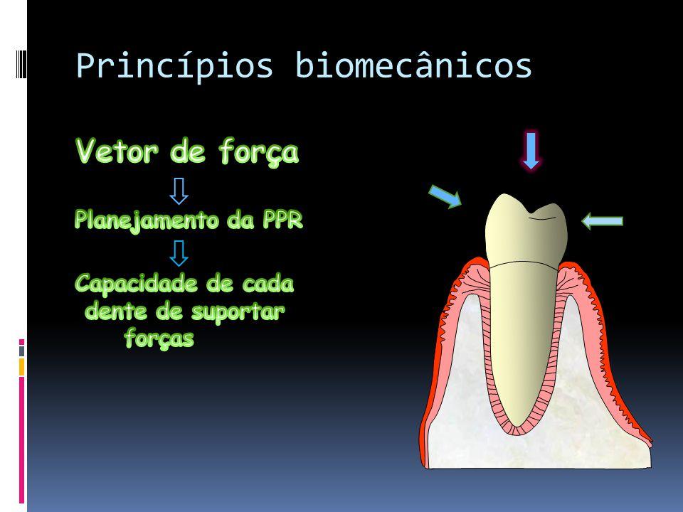 Princípios biomecânicos Vetor de força Planejamento da PPR Capacidade de cada dente de suportar forças