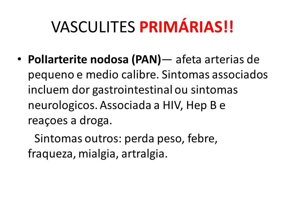 VASCULITES PRIMÁRIAS!!