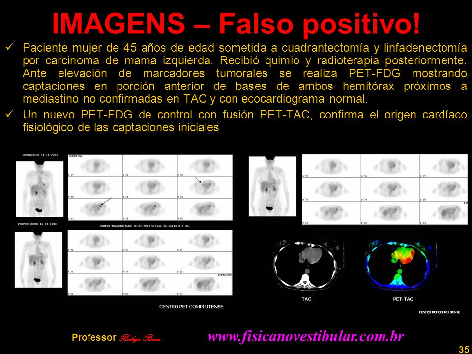 IMAGENS – Falso positivo!