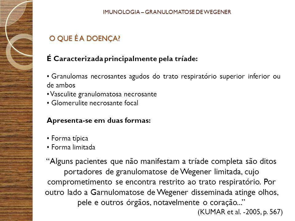 IMUNOLOGIA – GRANULOMATOSE DE WEGENER