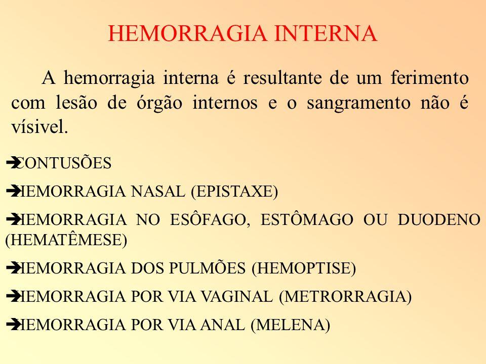 HEMORRAGIA INTERNA A hemorragia interna é resultante de um ferimento com lesão de órgão internos e o sangramento não é vísivel.