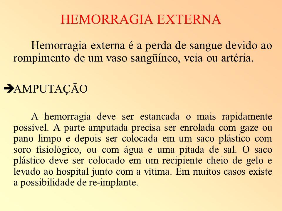 HEMORRAGIA EXTERNA AMPUTAÇÃO