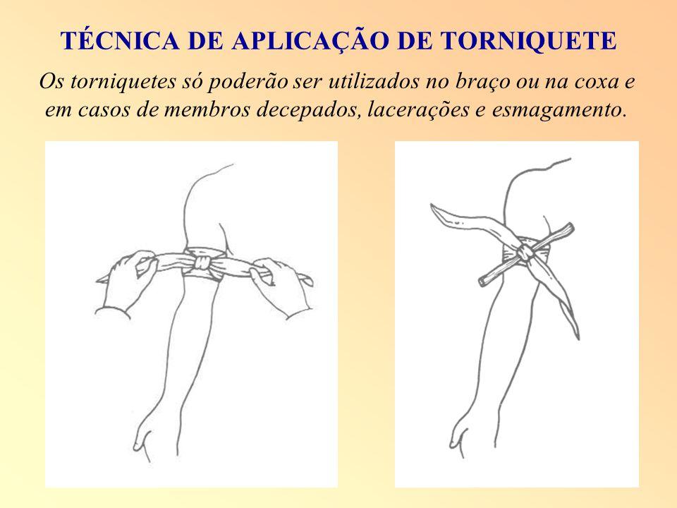 TÉCNICA DE APLICAÇÃO DE TORNIQUETE