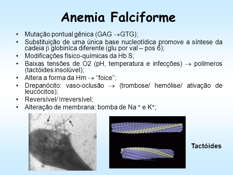 Anemia Falciforme Mutação pontual gênica (GAG GTG);