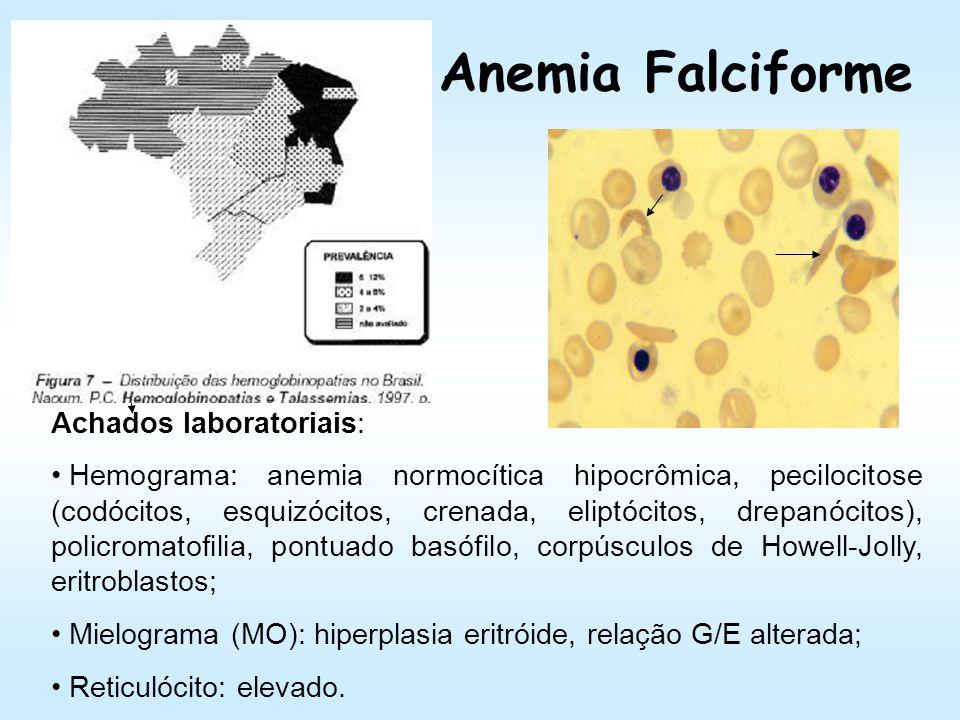 Anemia Falciforme Achados laboratoriais: