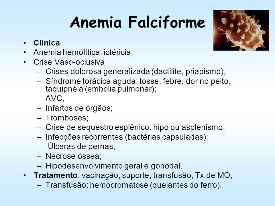 Anemia Falciforme Clínica Anemia hemolítica: ictéricia;