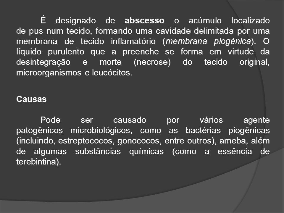 É designado de abscesso o acúmulo localizado de pus num tecido, formando uma cavidade delimitada por uma membrana de tecido inflamatório (membrana piogénica). O líquido purulento que a preenche se forma em virtude da desintegração e morte (necrose) do tecido original, microorganismos e leucócitos.