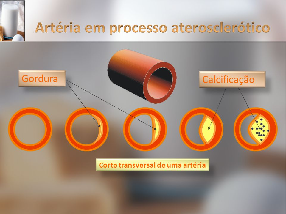 Artéria em processo aterosclerótico