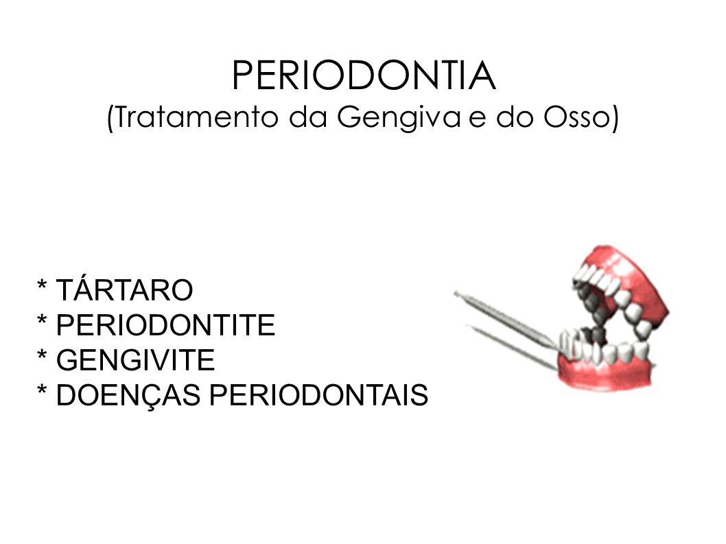 PERIODONTIA (Tratamento da Gengiva e do Osso)
