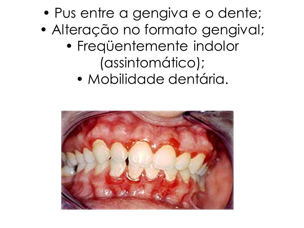 • Pus entre a gengiva e o dente; • Alteração no formato gengival; • Freqüentemente indolor (assintomático); • Mobilidade dentária.