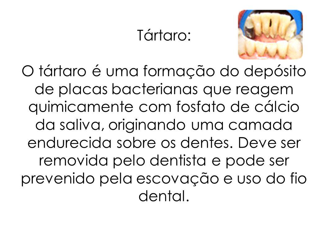 Tártaro: O tártaro é uma formação do depósito de placas bacterianas que reagem quimicamente com fosfato de cálcio da saliva, originando uma camada endurecida sobre os dentes.