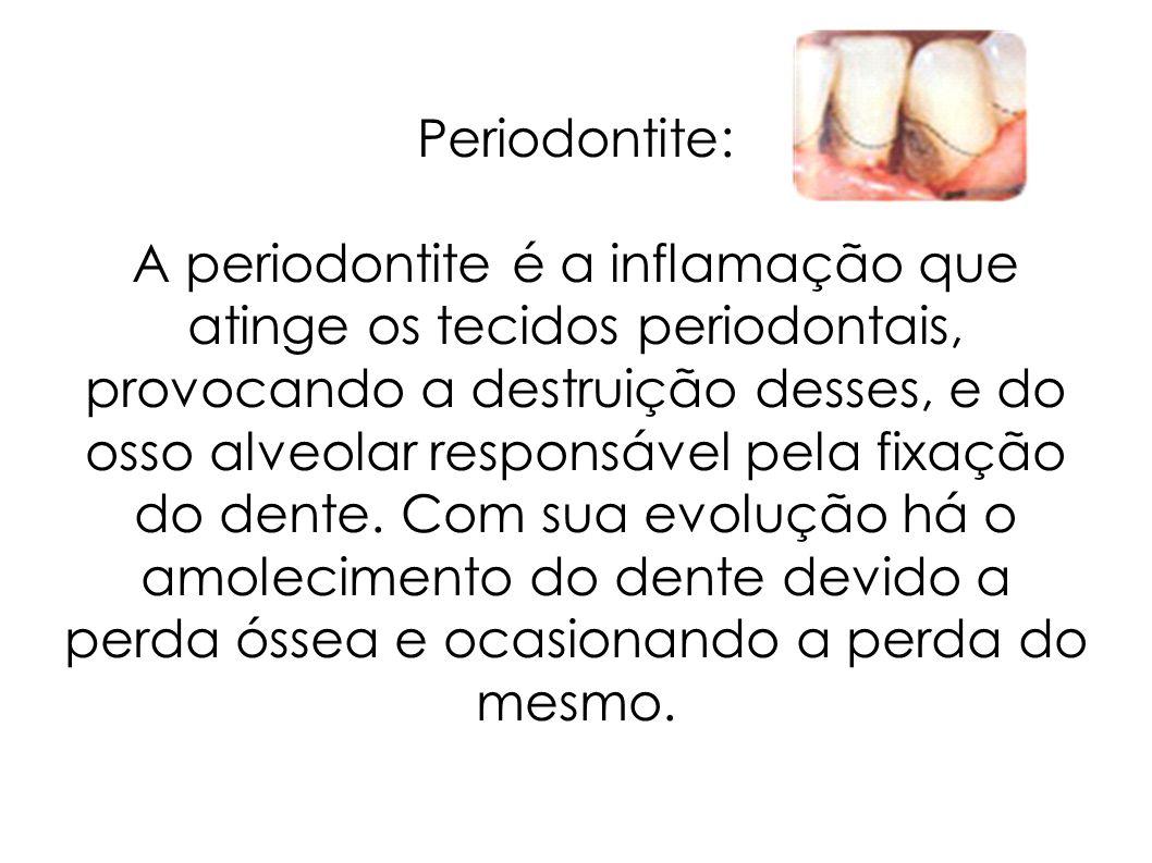Periodontite: A periodontite é a inflamação que atinge os tecidos periodontais, provocando a destruição desses, e do osso alveolar responsável pela fixação do dente.