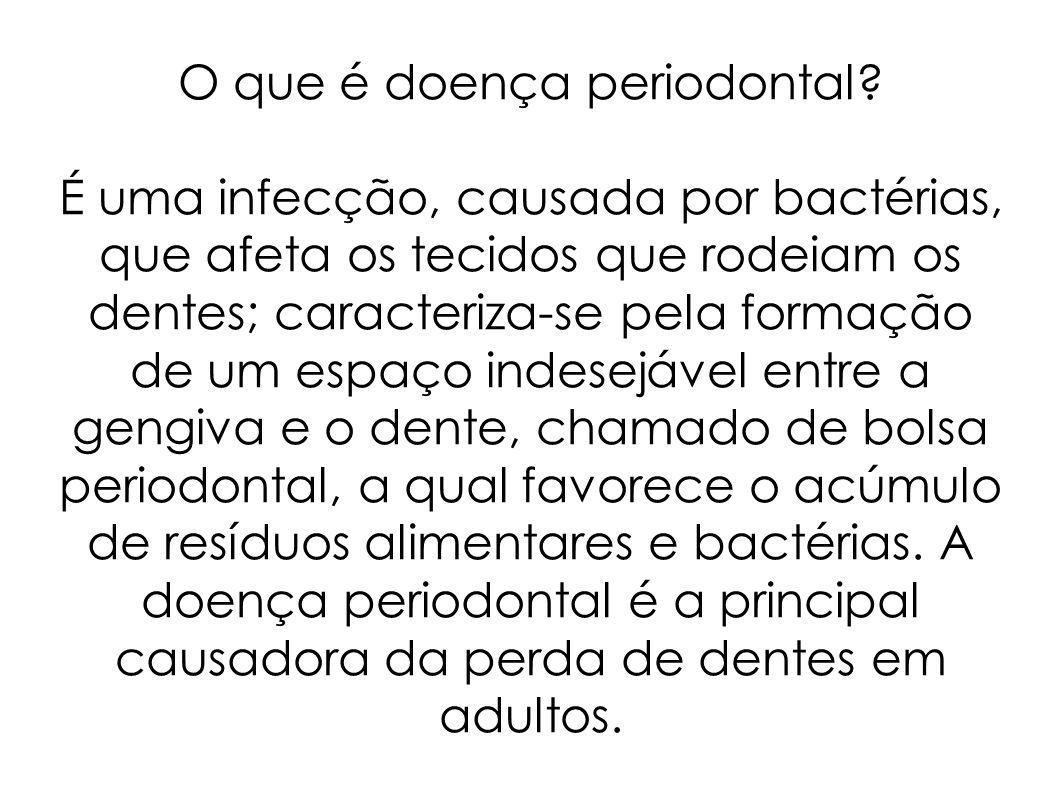O que é doença periodontal