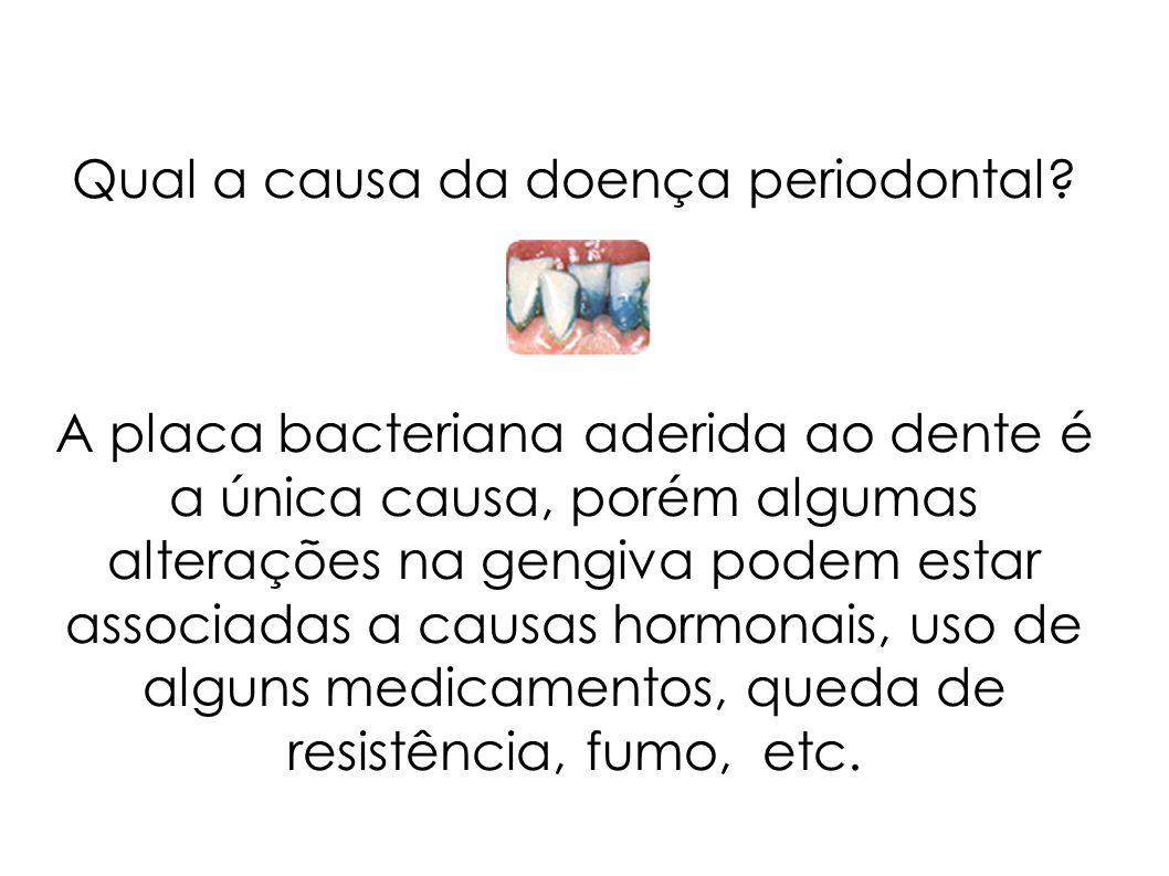 Qual a causa da doença periodontal