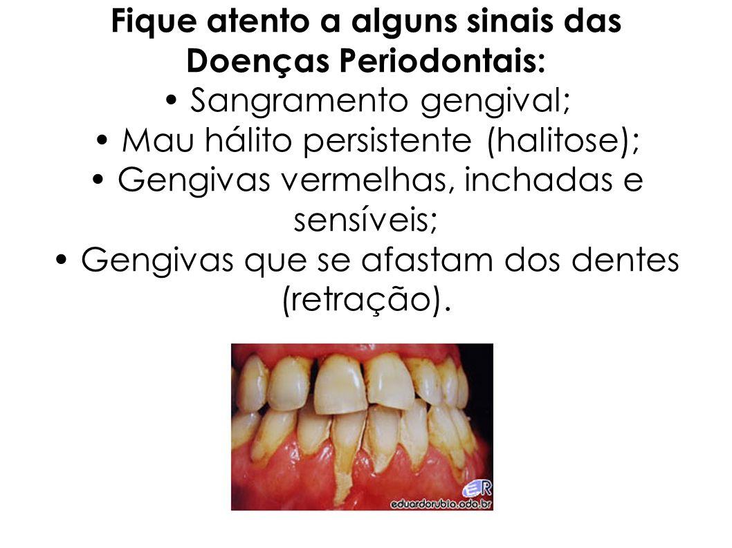 Fique atento a alguns sinais das Doenças Periodontais: • Sangramento gengival; • Mau hálito persistente (halitose); • Gengivas vermelhas, inchadas e sensíveis; • Gengivas que se afastam dos dentes (retração).