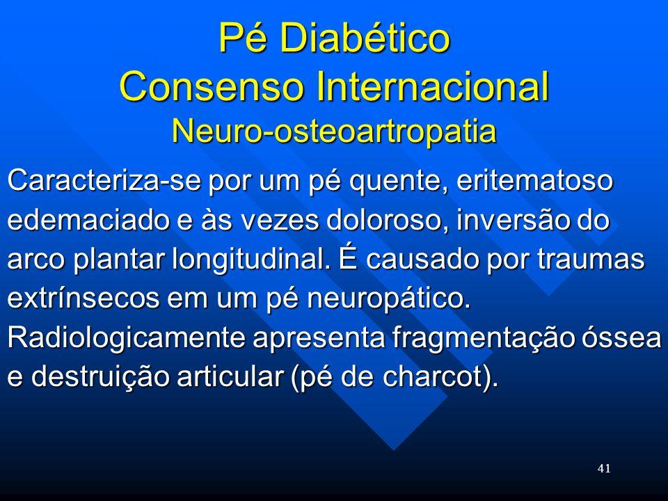 Pé Diabético Consenso Internacional Neuro-osteoartropatia
