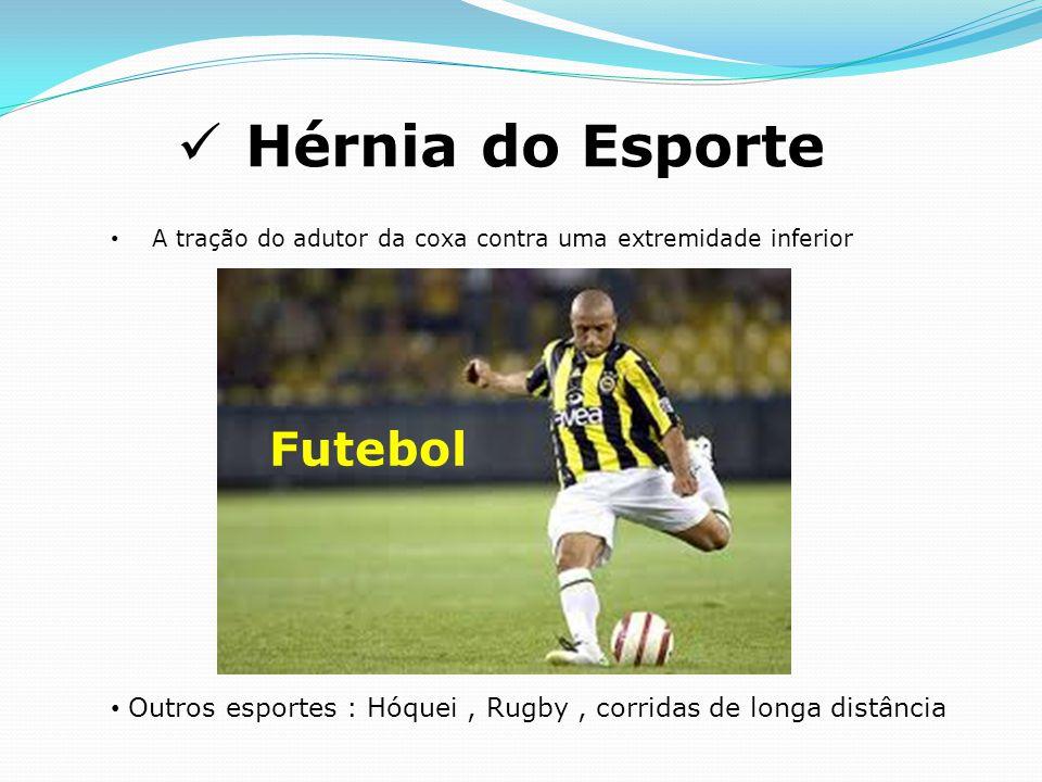 Hérnia do Esporte Futebol