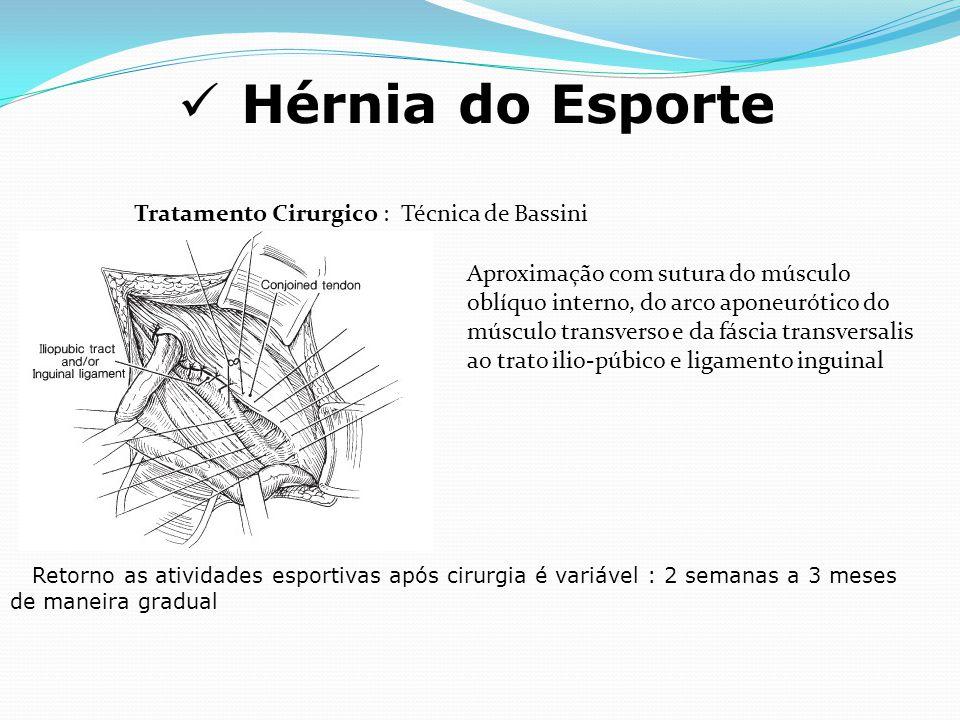 Hérnia do Esporte Tratamento Cirurgico : Técnica de Bassini