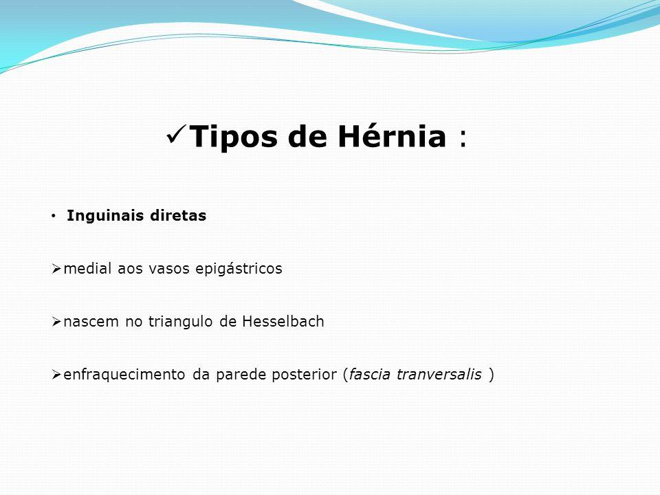 Tipos de Hérnia : Inguinais diretas medial aos vasos epigástricos