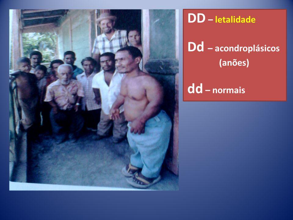 DD – letalidade Dd – acondroplásicos (anões) dd – normais