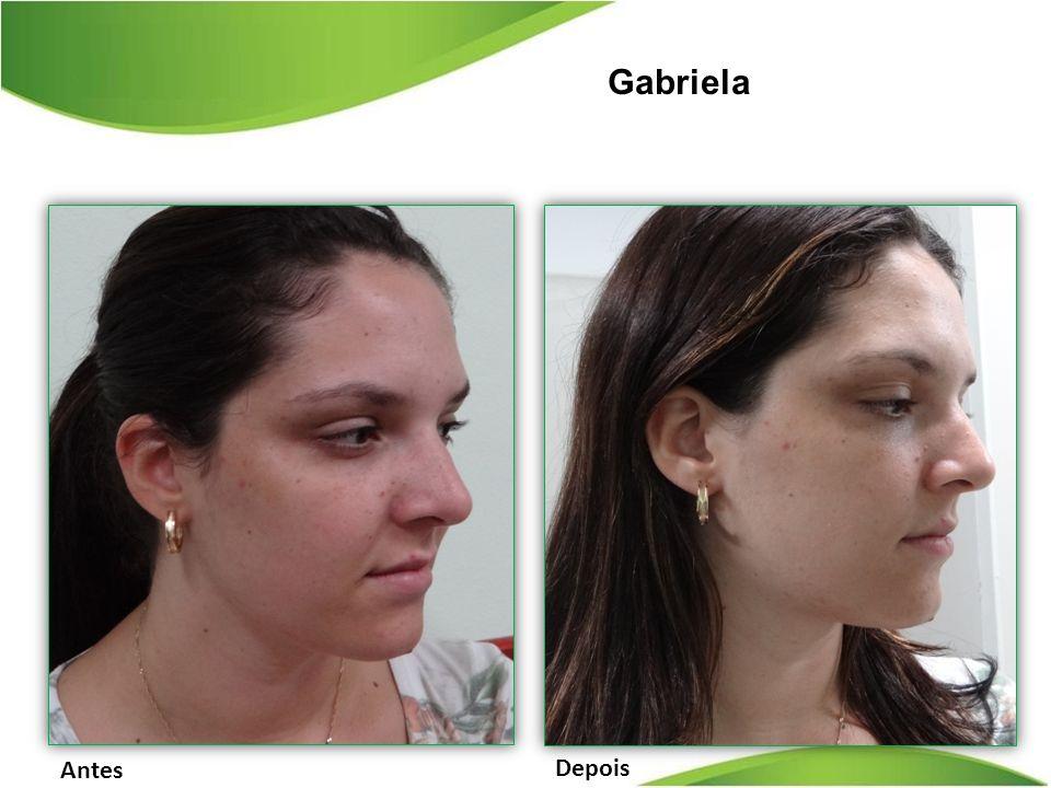 Gabriela Antes Depois