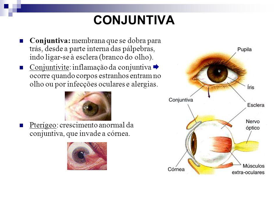 CONJUNTIVA Conjuntiva: membrana que se dobra para trás, desde a parte interna das pálpebras, indo ligar-se à esclera (branco do olho).