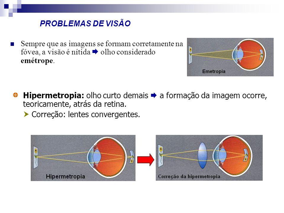 PROBLEMAS DE VISÃO Sempre que as imagens se formam corretamente na fóvea, a visão é nítida  olho considerado emétrope.