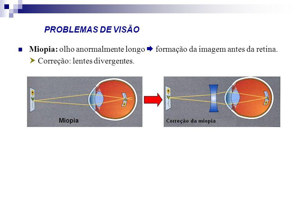 PROBLEMAS DE VISÃO Miopia: olho anormalmente longo  formação da imagem antes da retina.