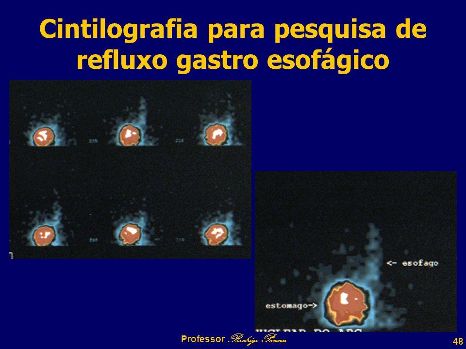 Cintilografia para pesquisa de refluxo gastro esofágico