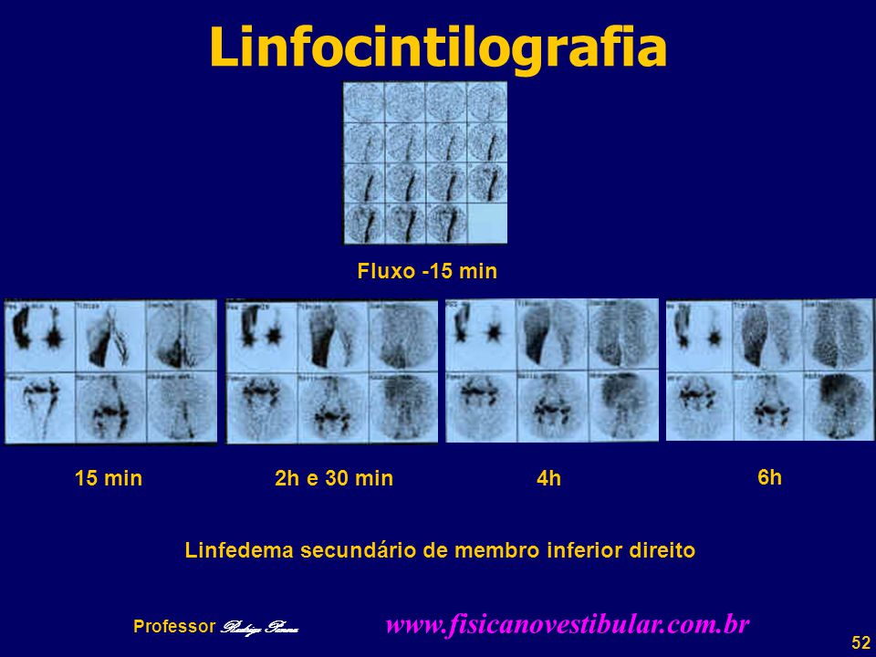 Linfocintilografia Fluxo -15 min 15 min 2h e 30 min 4h 6h
