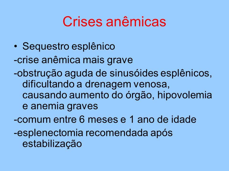 Crises anêmicas Sequestro esplênico -crise anêmica mais grave