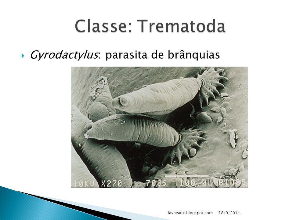 Classe: Trematoda Gyrodactylus: parasita de brânquias