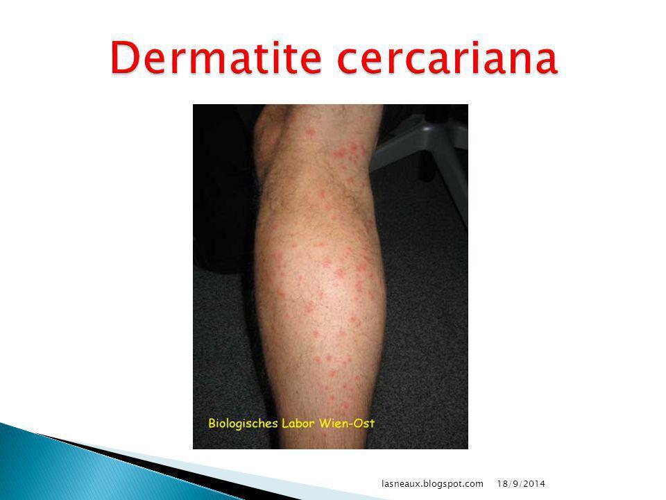 Dermatite cercariana lasneaux.blogspot.com 02/04/2017