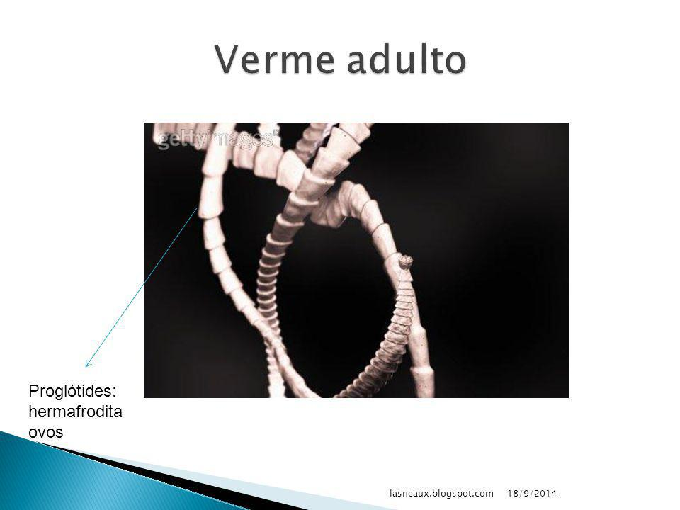 Verme adulto Proglótides: hermafrodita ovos lasneaux.blogspot.com
