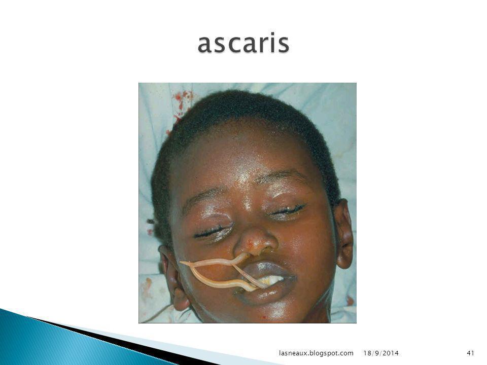 ascaris lasneaux.blogspot.com 02/04/2017